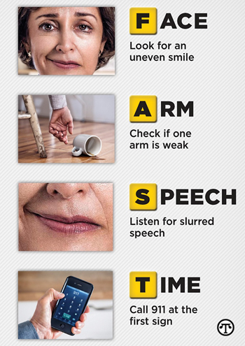 Signs of a stroke that you should know about.