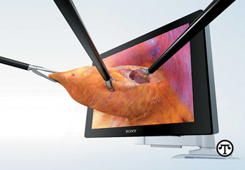 The ENDOEYE FLEX 3D gives surgeons the ability to perform minimally invasive surgeries.