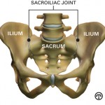No bones about it: In many cases, back pain comes from the sacroiliac joint.